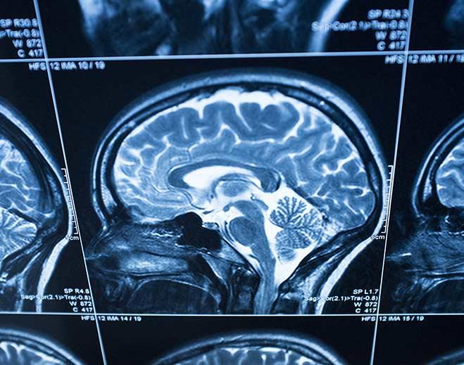 neurology-brain-scan-mri/